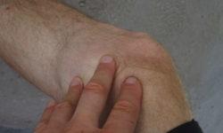 Radfahren gegen Arthrose