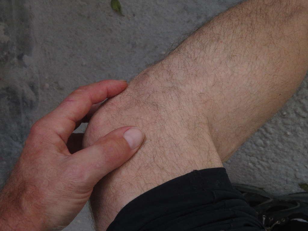 Knieschmerzen beim Radfahren vermeiden – Ein Leitfaden